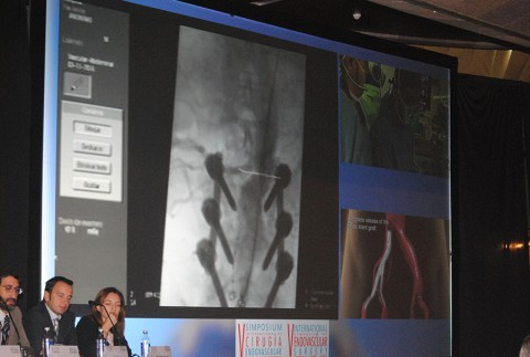 Dr. Merino Diaz en el V Simposium Internacional de Cirugía Endovascular